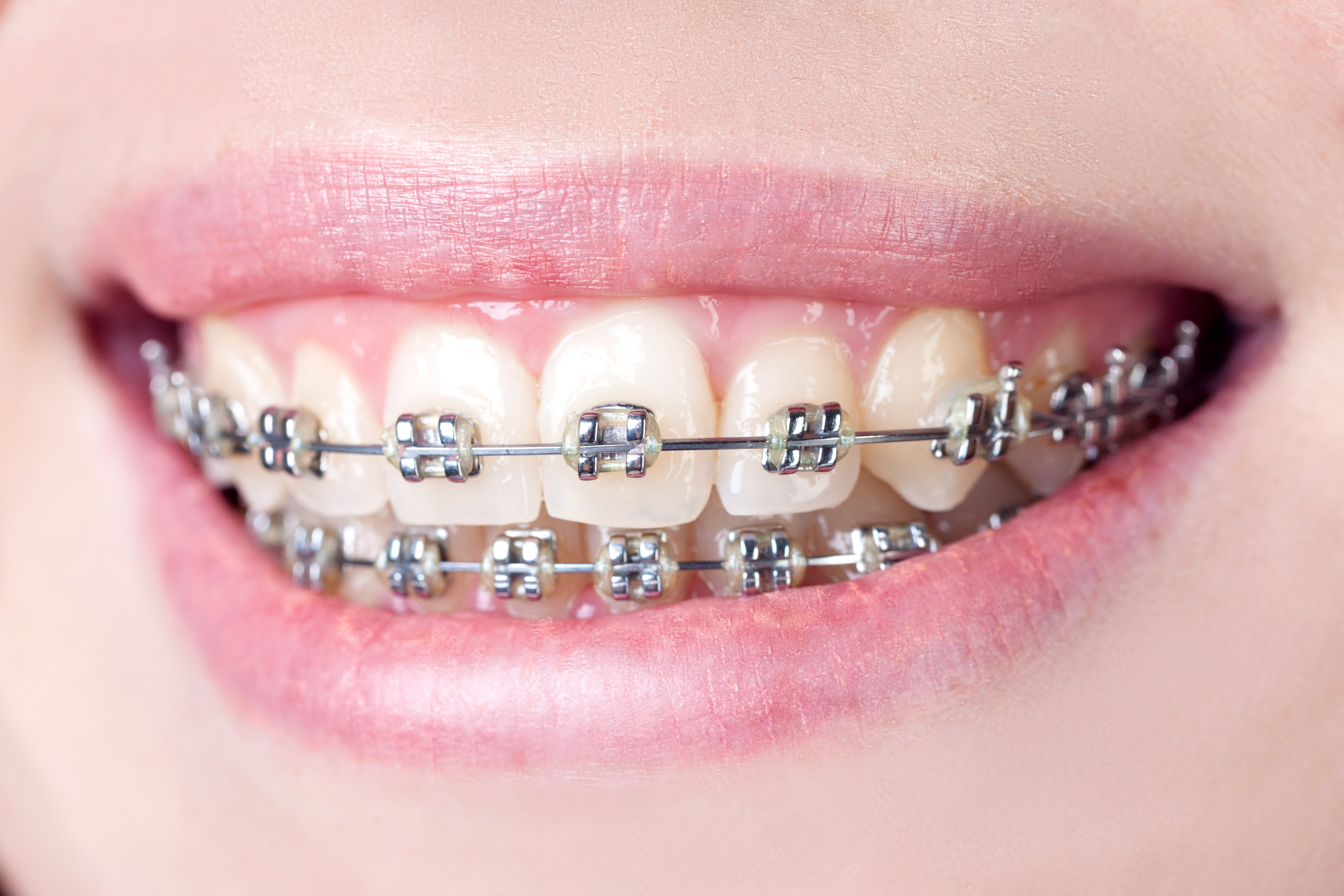 Image result for Classic braces