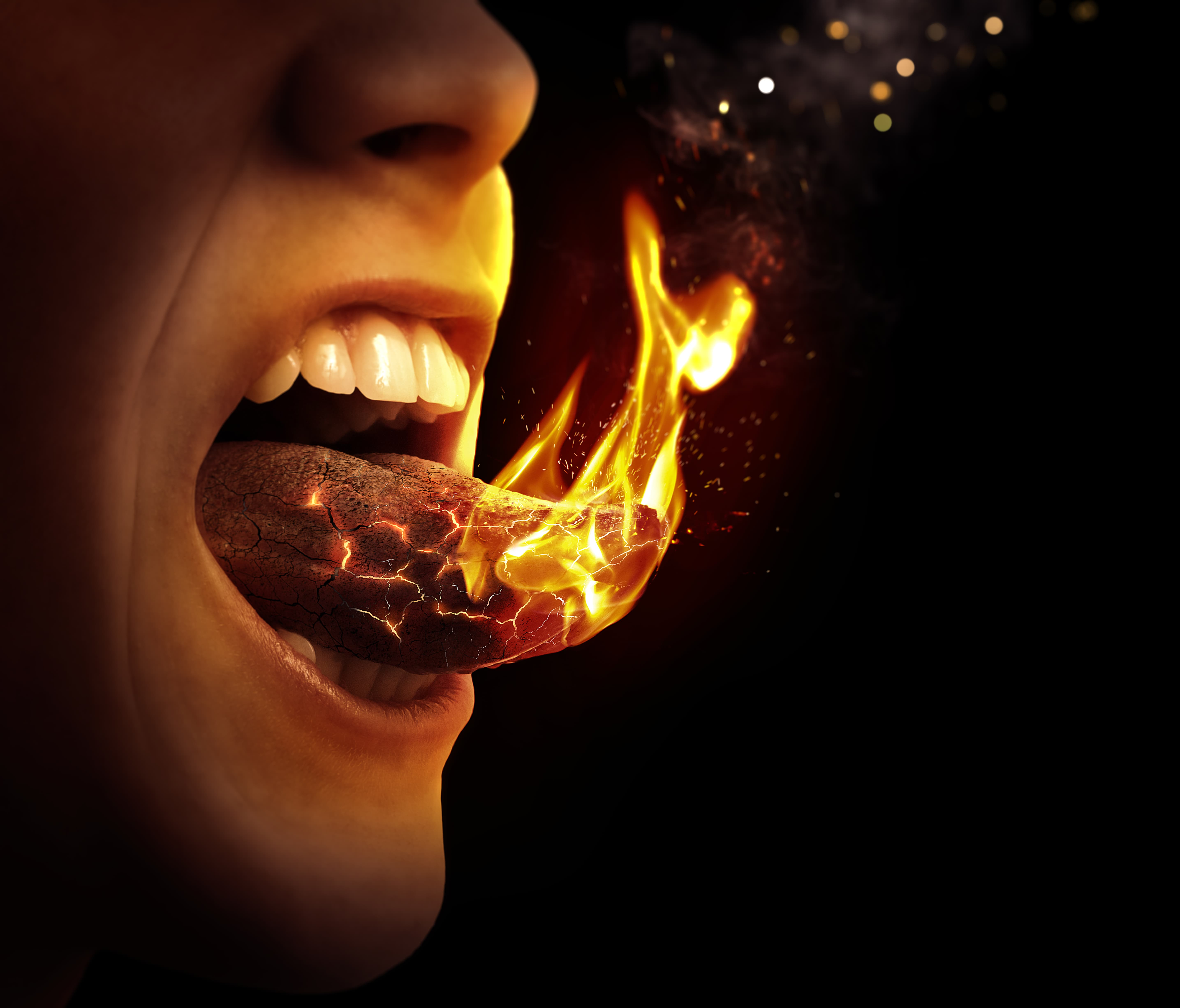 Burning Mouth Syndrome | Symptoms & Treatment of Burning Tongue