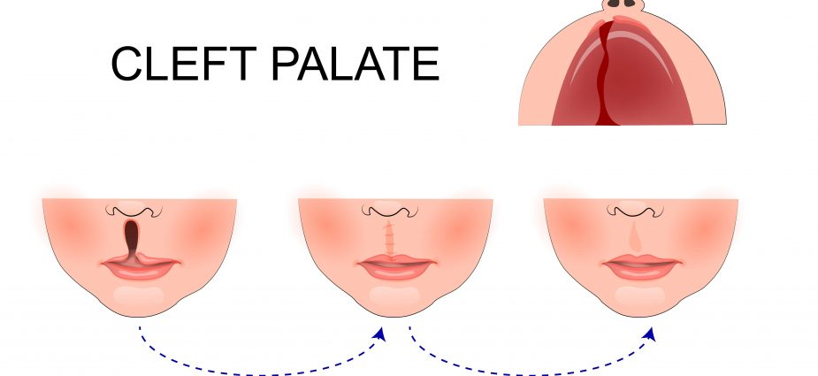 Cleft Palate and Cleft Lip - A Complete Consumer Guide