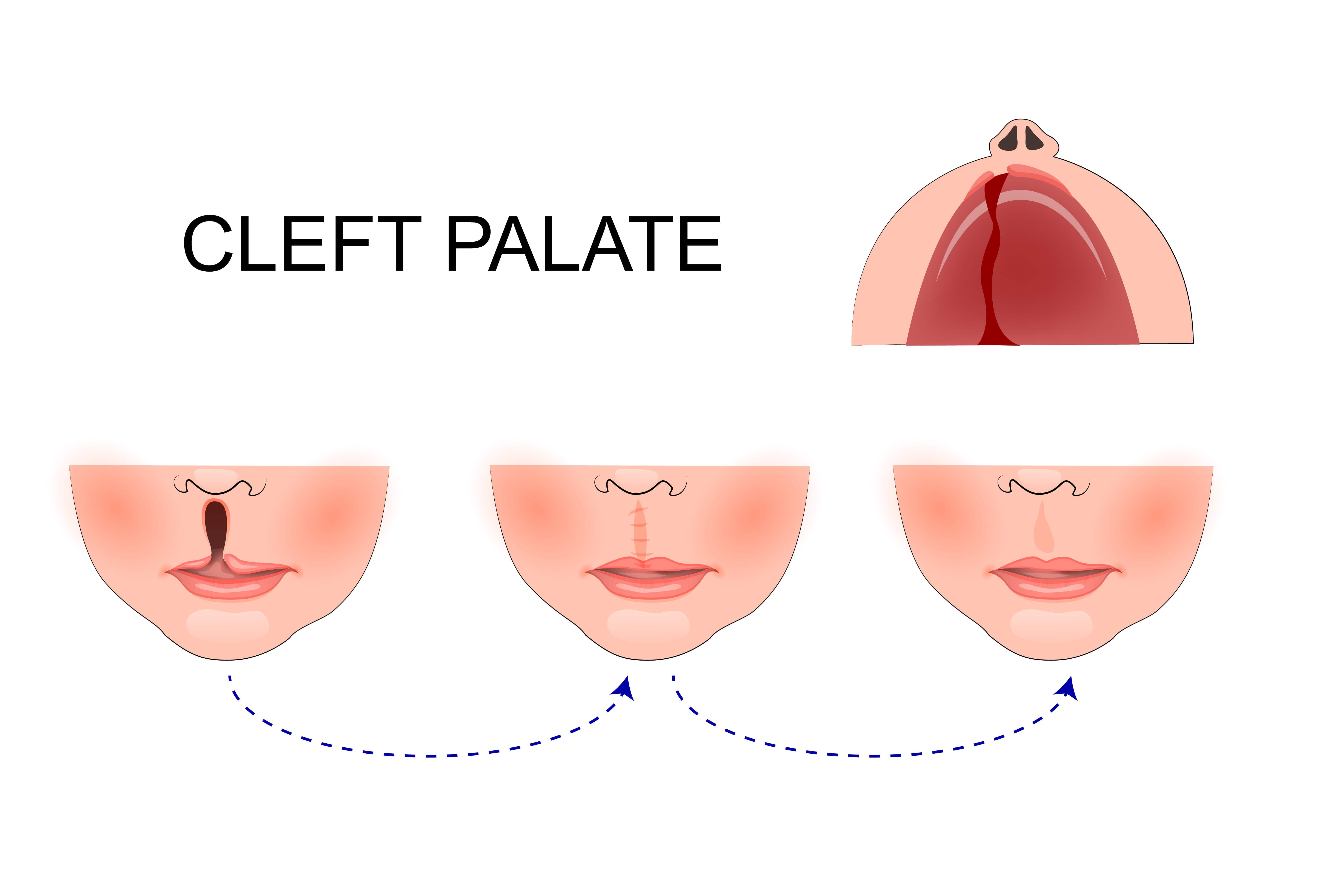 Anatomy of cleft lip
