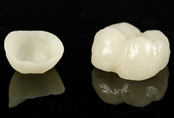Crowns Are Tooth Restorations Used To Preserve The Functionality Of Damaged Teeth Also Referred As Caps Dental Most Commonly