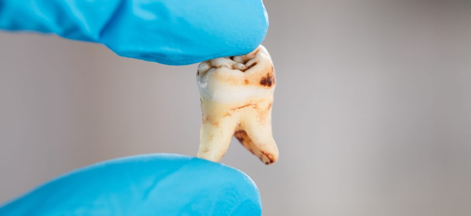 close up photo of a dentist holding an extracted, decayed tooth