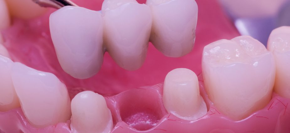 close up of a dental bridge showing preparation of adjacent teeth