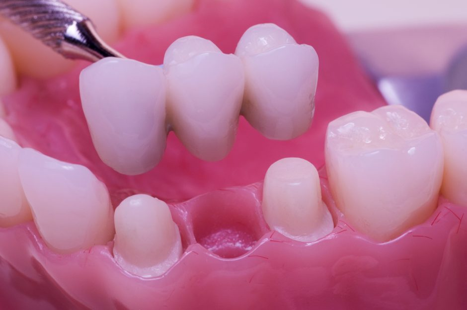 Dental Bridge Guide Treatment Planning Recovery Cost
