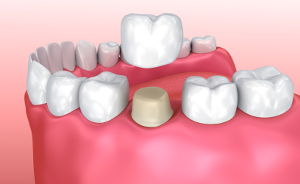 illustration showing a dental crown being placed on an abutment to replace a missing tooth