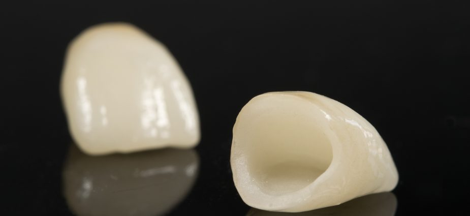 isolated dental crowns on a black background