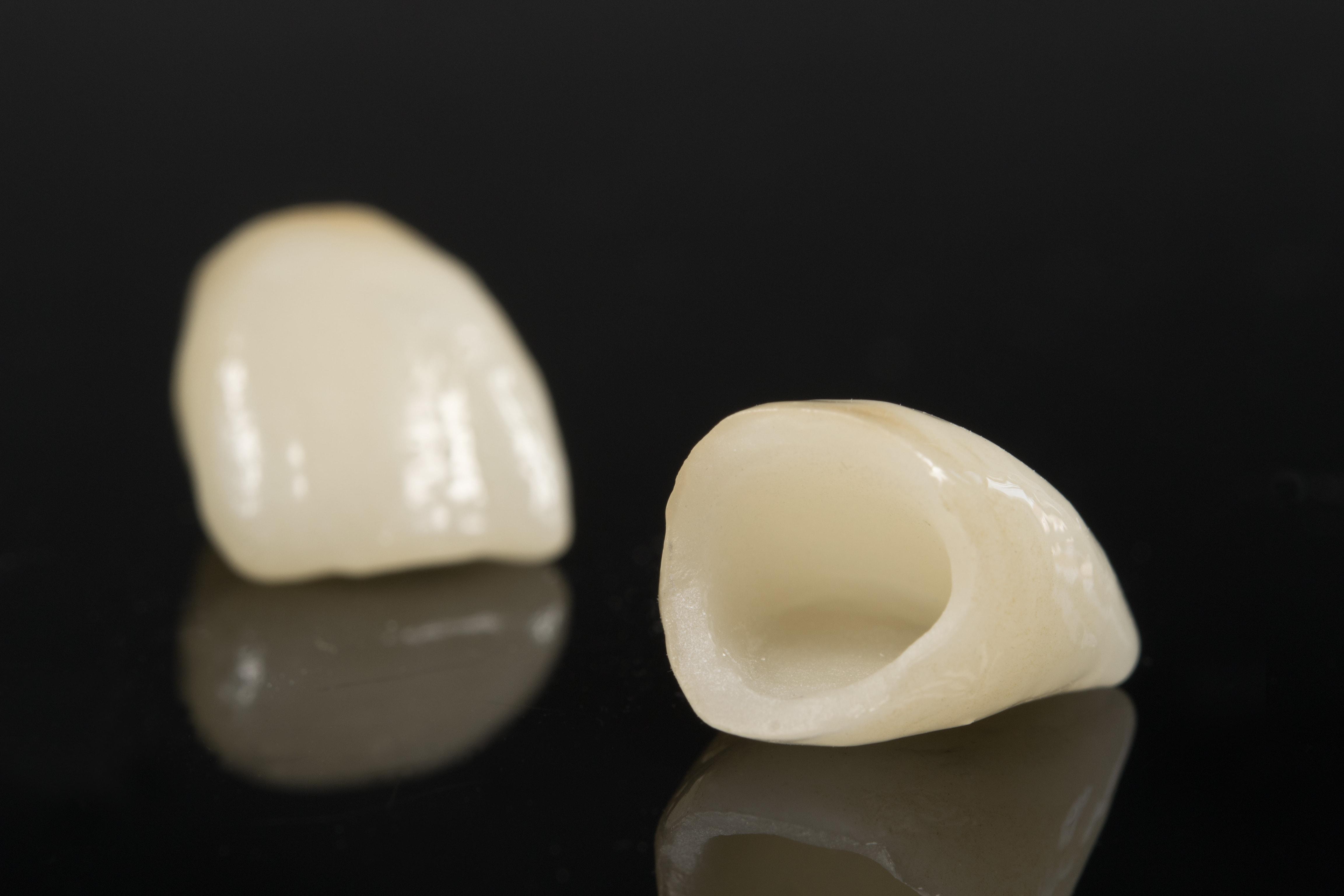 Dental Crowns | Benefits, Procedure Details amp Cost Info