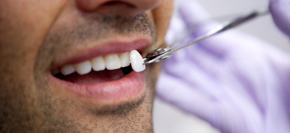 Porcelain Dental Veneers | Treatment, Recovery & Cost