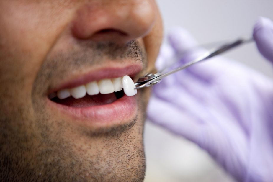 Porcelain Dental Veneers Treatment Recovery Cost Updated 2019