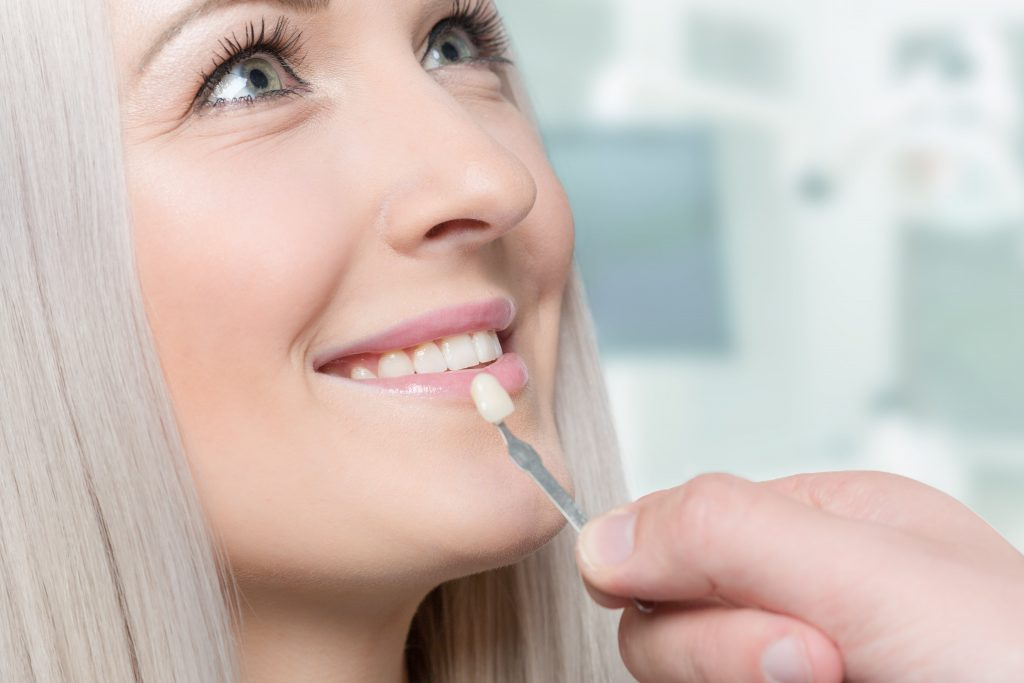 Minimal No Prep Dental Veneers What They Are How Much They Cost