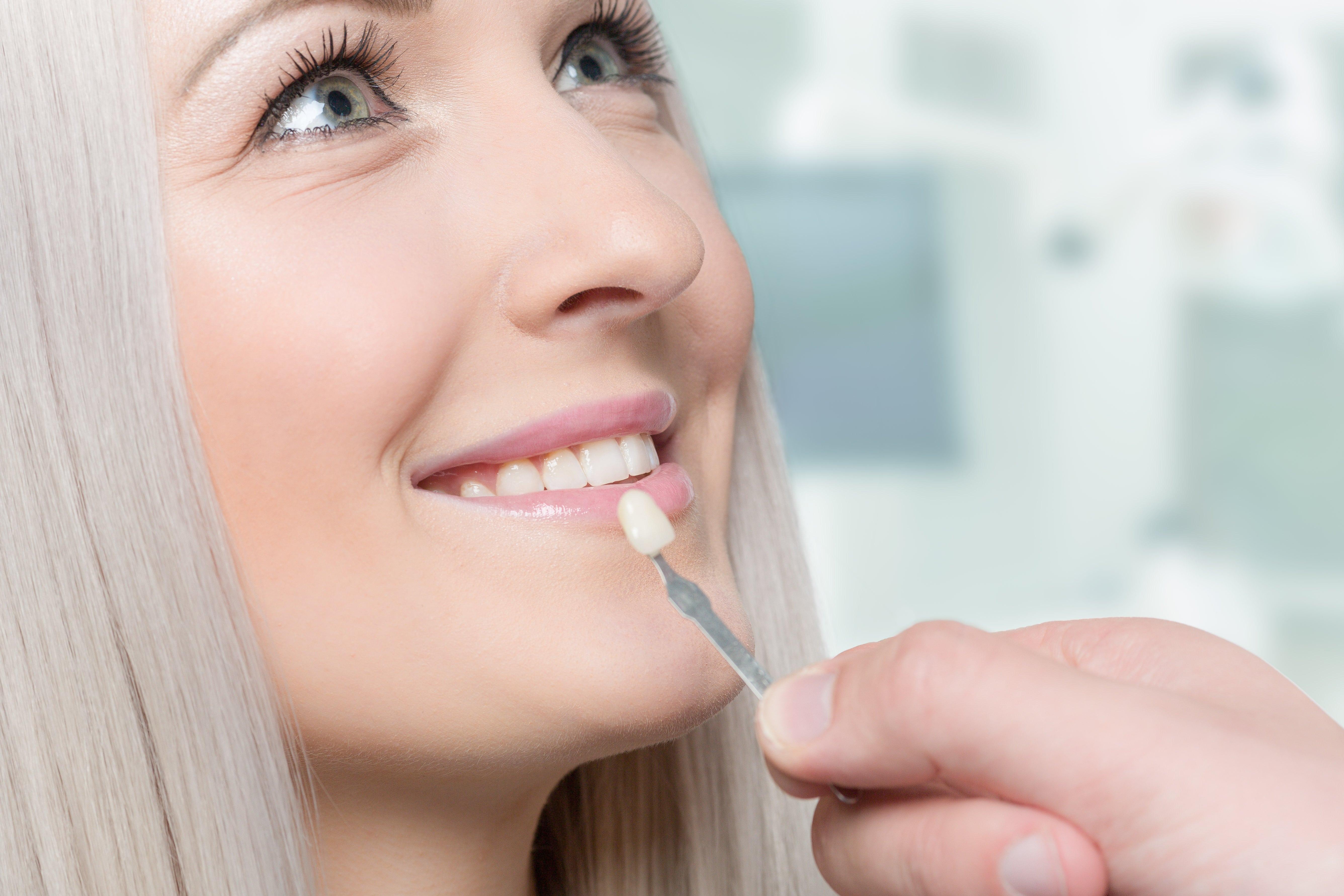Minimal No Prep Dental Veneers