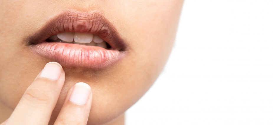 Dry Mouth Syndrome Symptoms Causes Treatments
