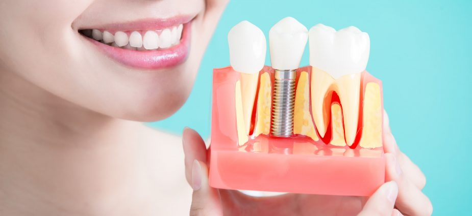 smiling woman holding a model of a row of teeth with a dental implant