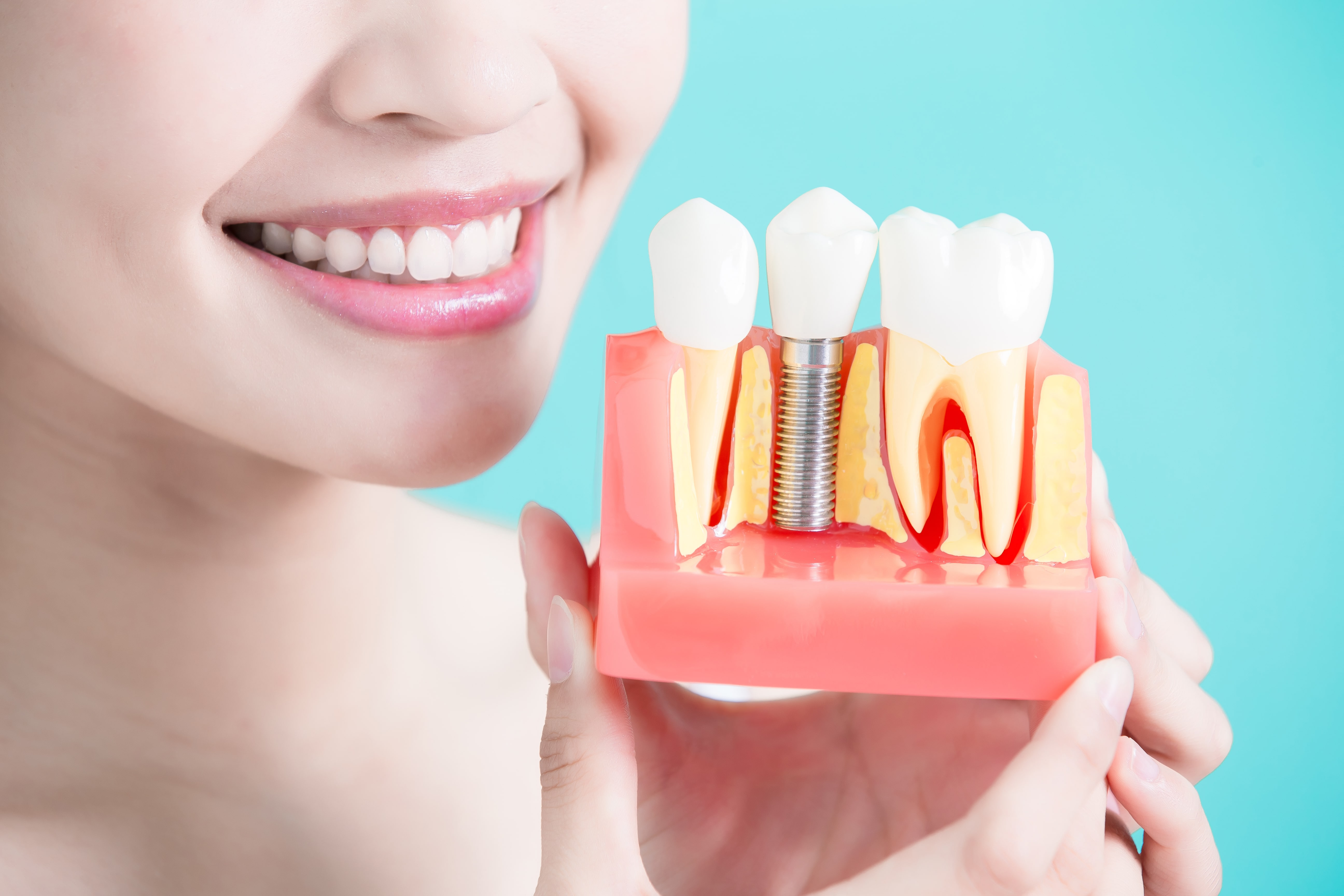 How Much Do Dental Implants Cost Are You An Implant Candidate