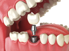illustration showing how a dental implant is attached to an abutment and dental crown