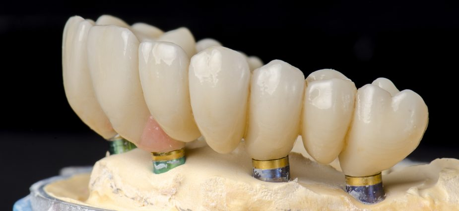 model showing a full lower arch with dental implants