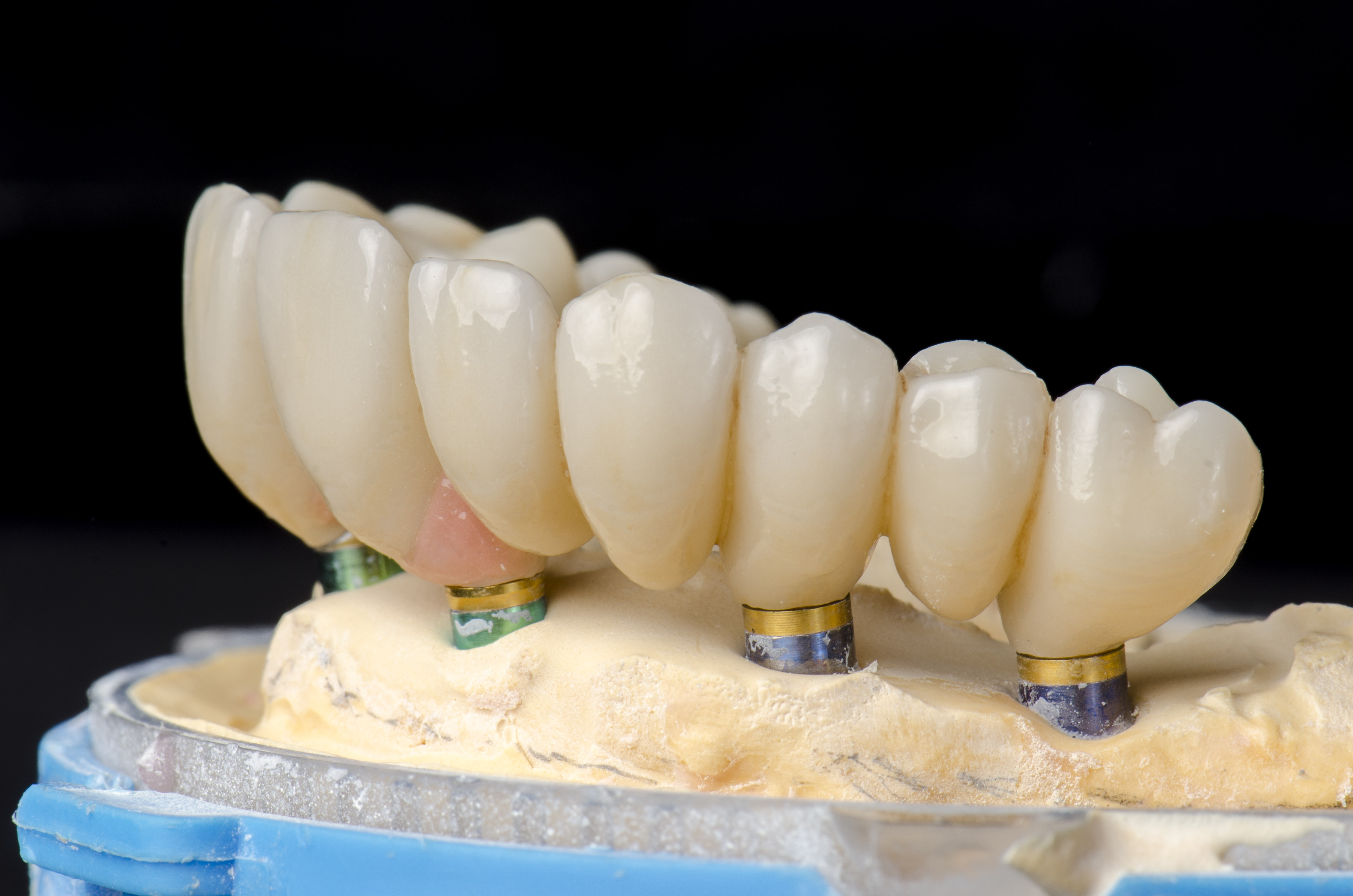 Implant Supported Full Arch Restorations All On 4 Teeth Tomorrow And More