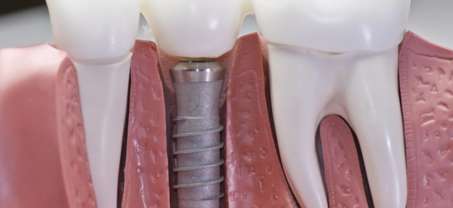 model showing a comparison between natural teeth roots and a dental implant above and below the gumline