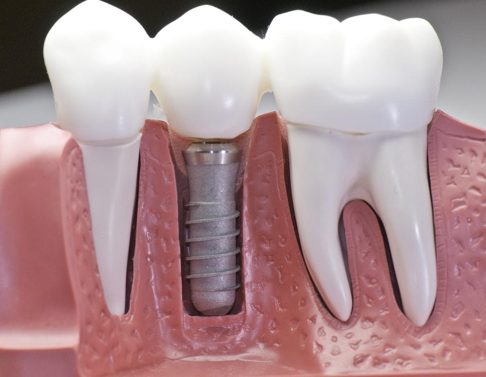 Виды и методы имплантации зубов в современном мире