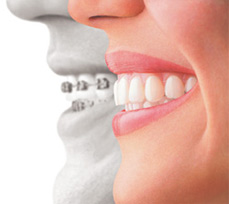 side by side comparison showing traditional dental braces and a clear dental aligner