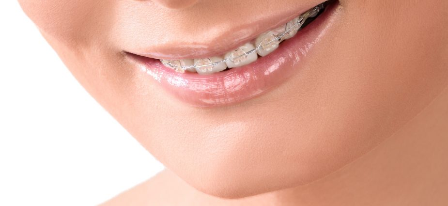 close up of a smiling adult woman wearing clear dental braces