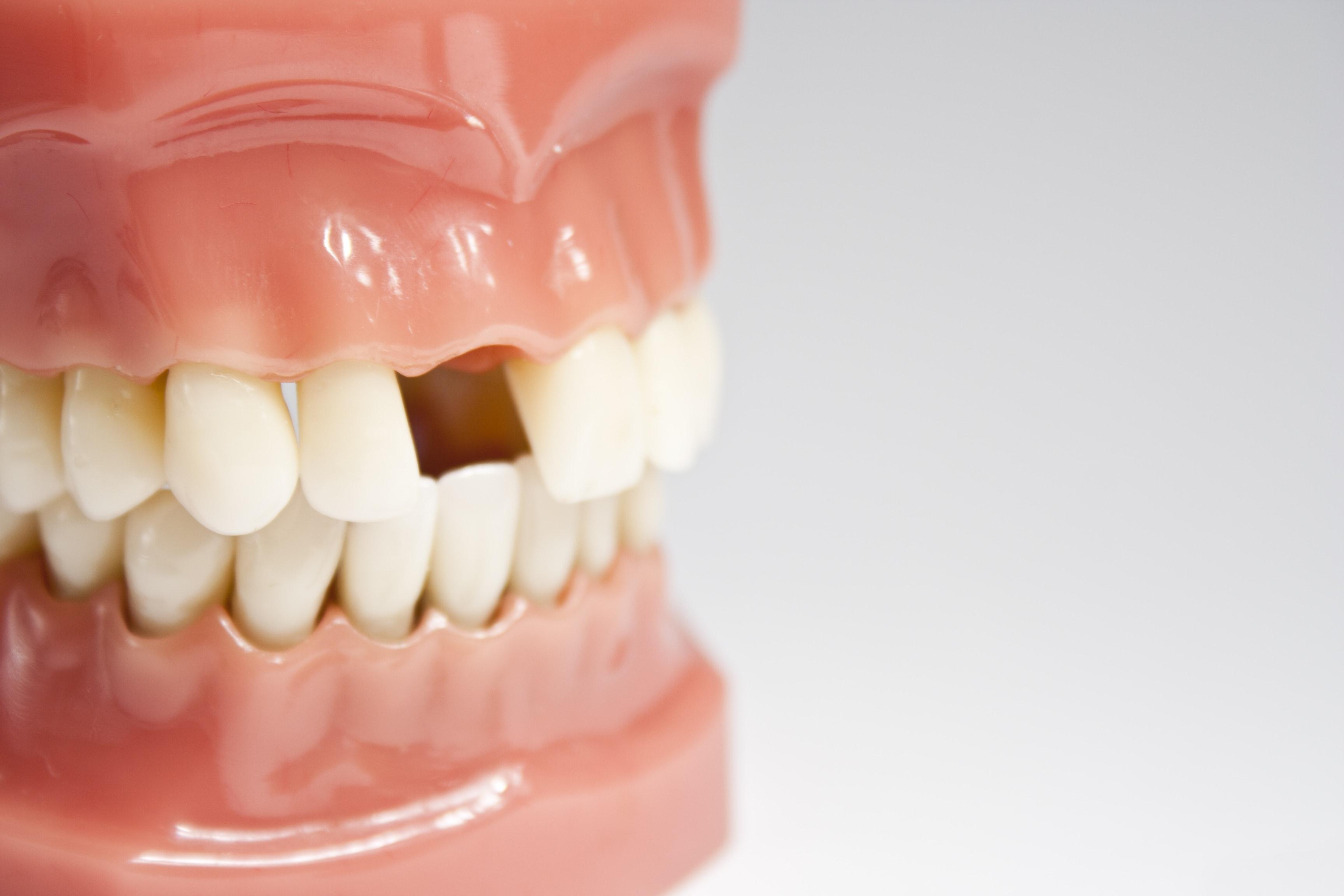 missing-tooth-min.jpg