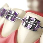 illustrated close up of dental braces fitted on teeth