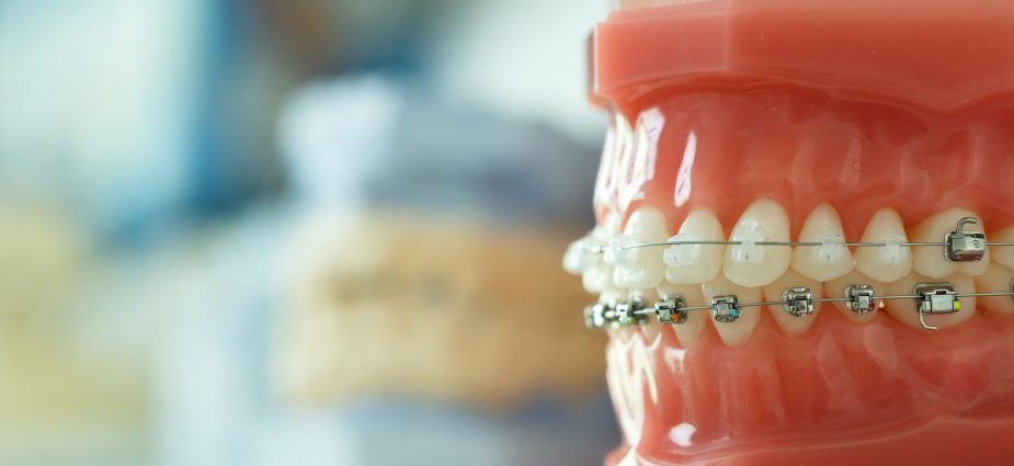 close up shot of a model of teeth displaying dental braces