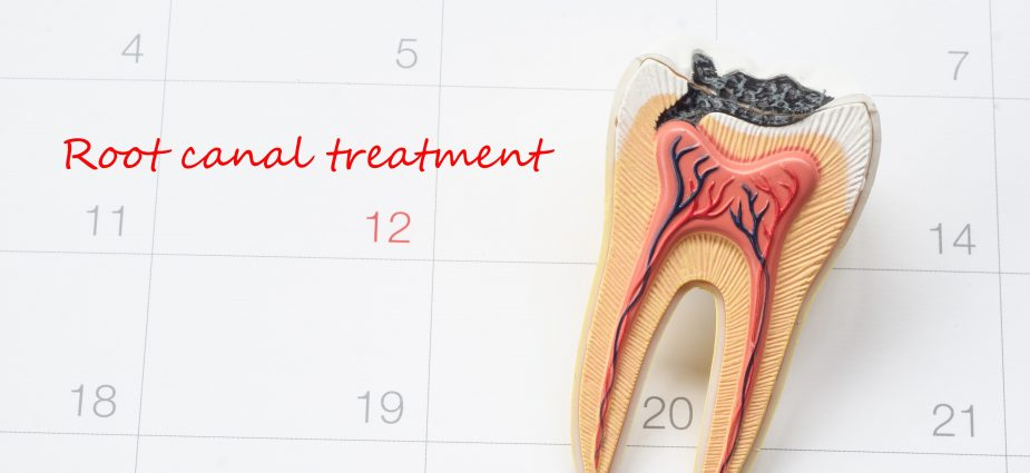 illustration of a tooth requiring root canal treatment sitting on a calendar