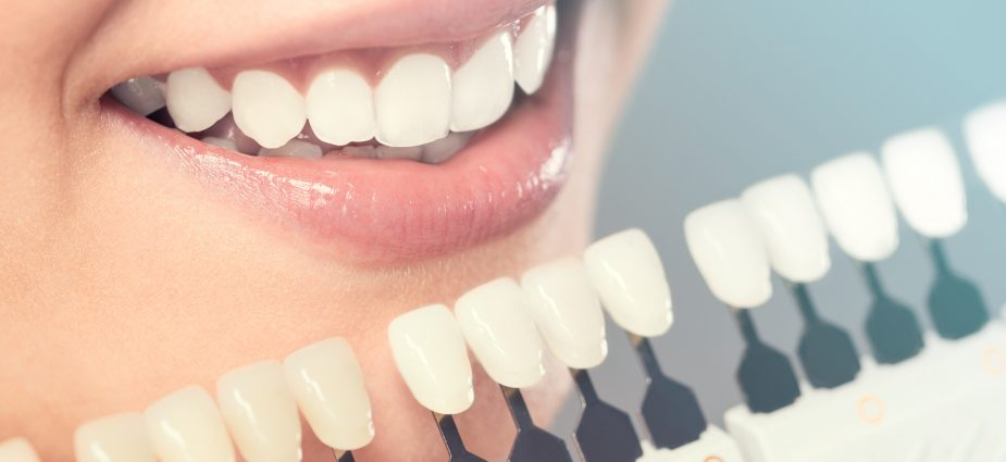 Cosmetic Dentistry and Its Particular Types
