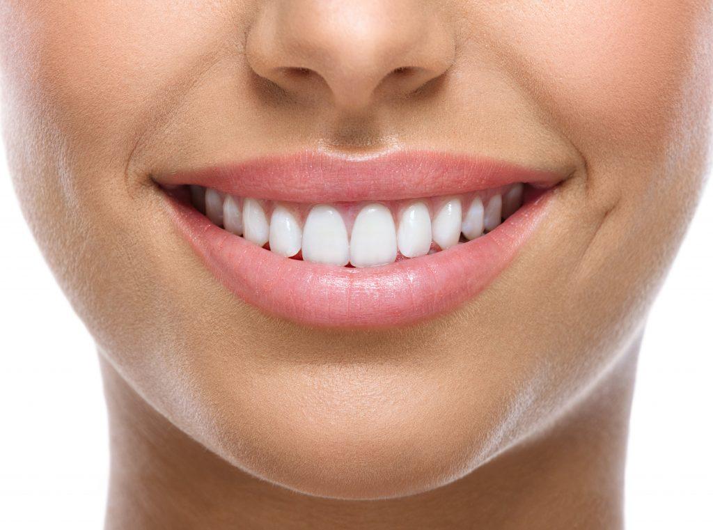 Anatomy of a Smile - Smile Esthetics 101