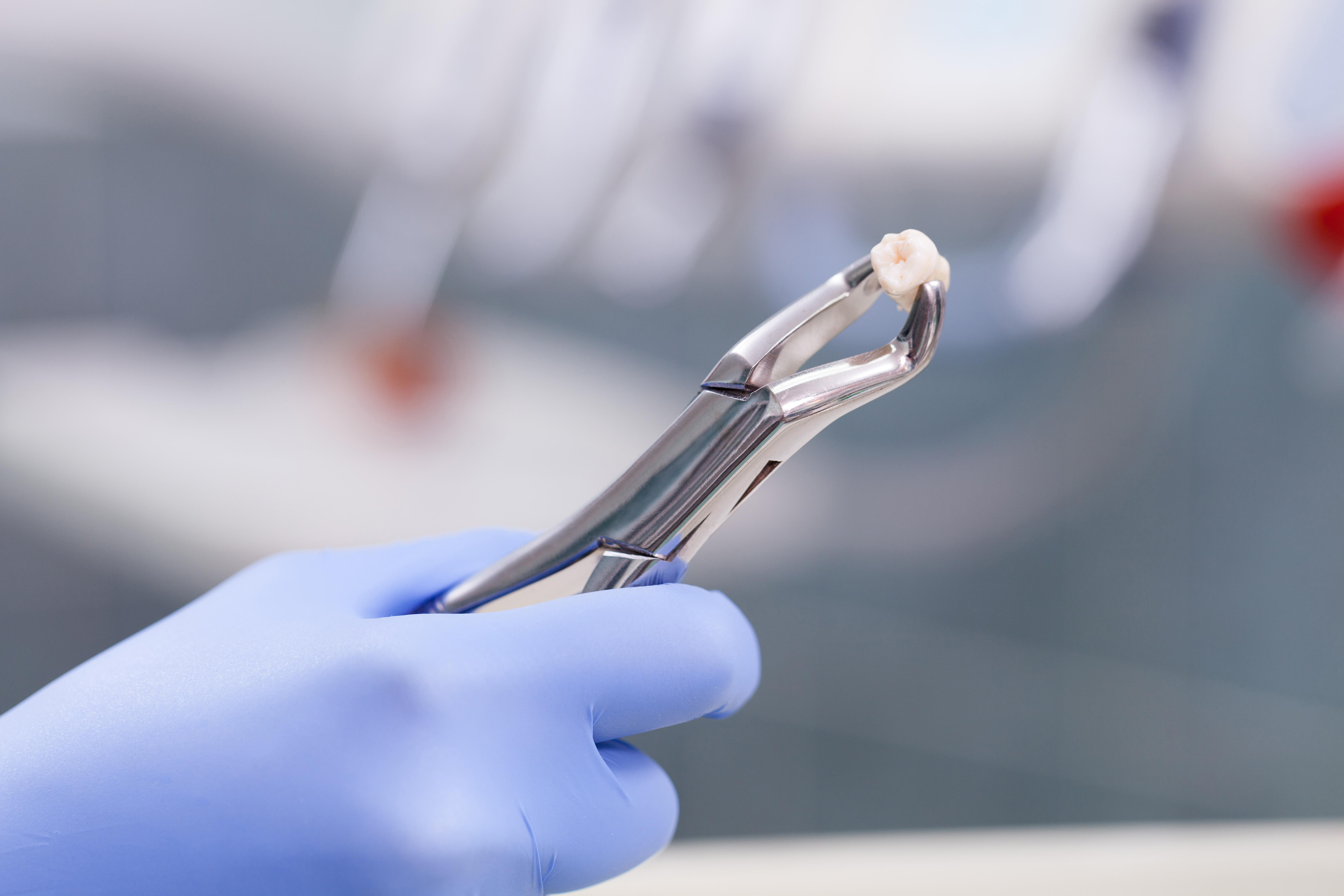 Tooth Extraction Expectations Complications Cost Aftercare