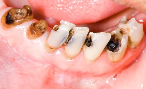 how to break down plaque on teeth