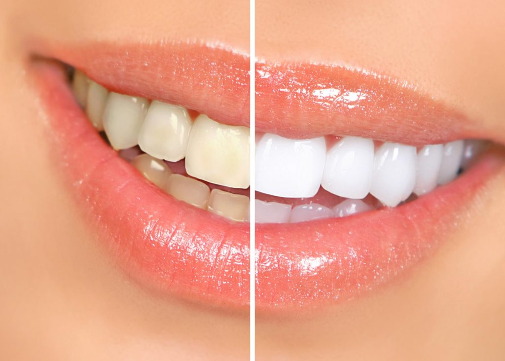 Image result for WHITE TEETH