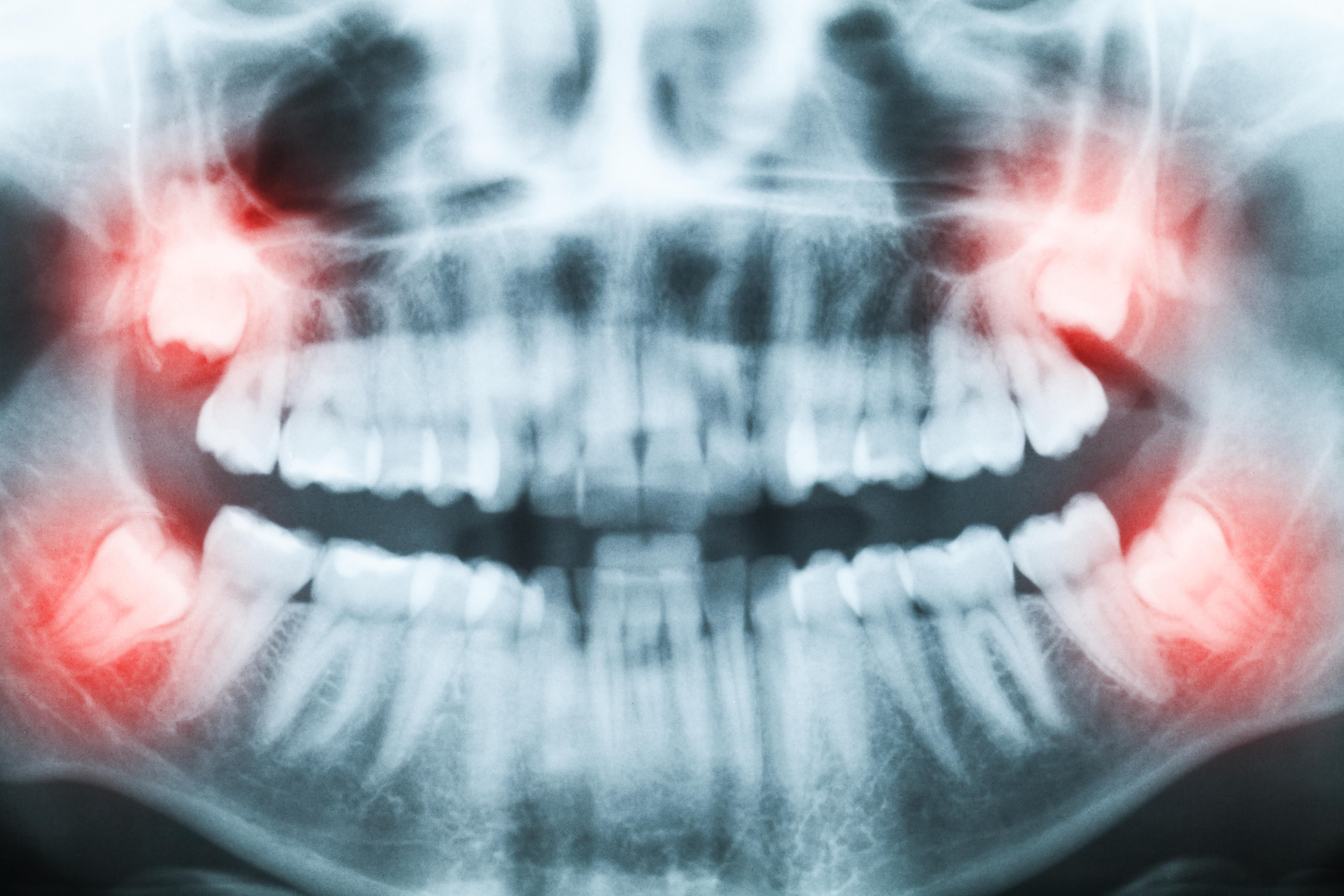 Wisdom Teeth Removal Tooth Extraction Cost Recovery Info