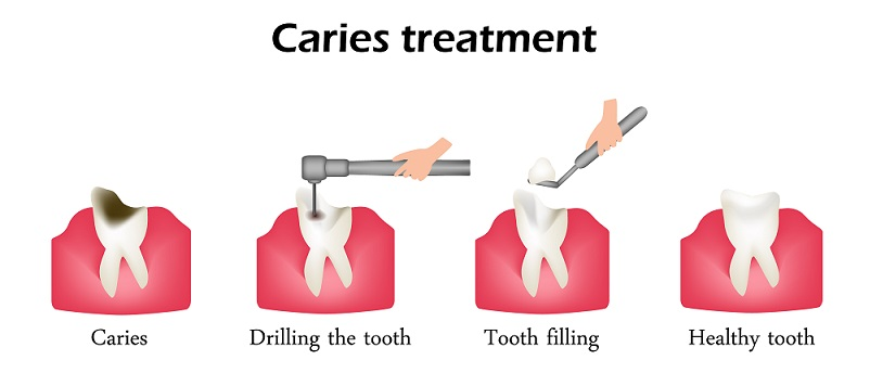 step-by-step dental filling procedure