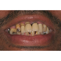 Before-Porcelain Crowns and Bridge