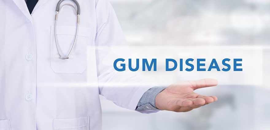 Gum Disease | Signs, Symptoms & Treatment Options