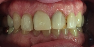 Before-Crown replacement for chipped front crowns