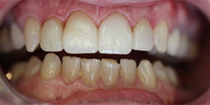 After-Crown replacement for chipped front crowns
