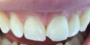 Before-Composite bonding to fix chipped front tooth