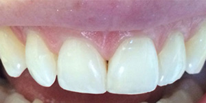 After-Composite bonding to fix chipped front tooth