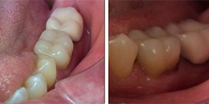 After-One day Cerec crown to fix fractured molar