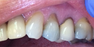 Before-Cover recession with one day Cerec crown