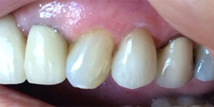 After-Cover recession with one day Cerec crown