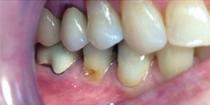 Before-Cover recession with composite bonding