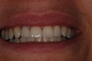 After-Patient 3