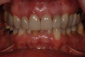 After-Patient 8
