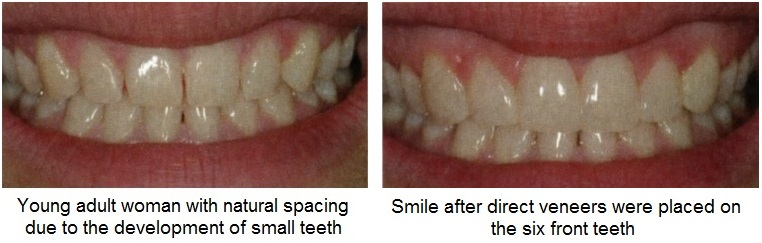 direct veneers patient before and after