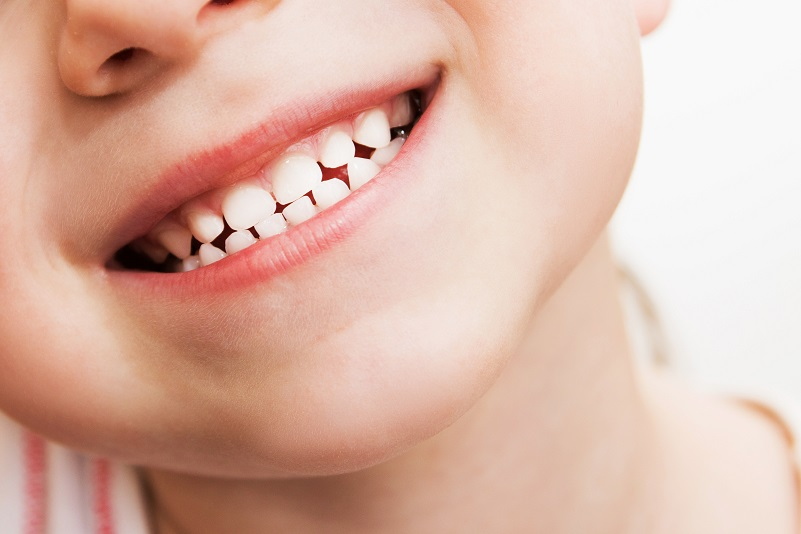 Smiling child with primary (baby) teeth